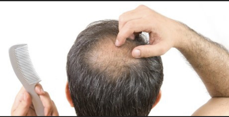 NATURAL WAYS TO HELP THINNING HAIR – HAPPY HEALTHY BOOMERS
